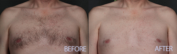 Chest hair Before and After